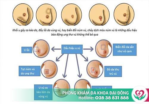 Những triệu chứng thường đi kèm khi bị đau vú do bệnh lý