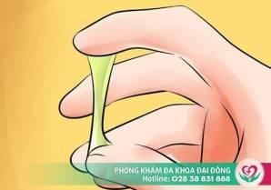 Âm đạo ra chất nhầy bất thường - Không chữa sớm dễ vô sinh
