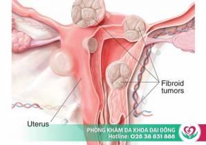 U xơ tử cung và những điều chị em cần biết