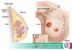 Những mối nguy hại do bệnh viêm tuyến vú và cách phòng tránh