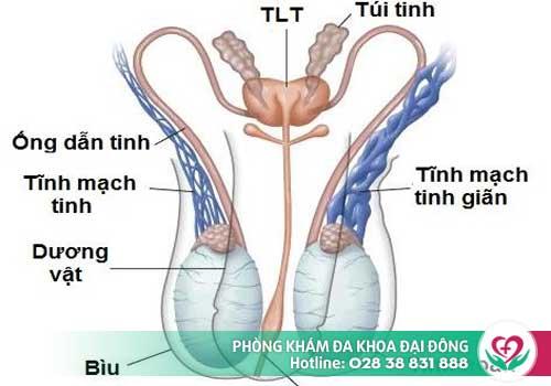 Giãn tĩnh mạch thừng tinh là một trong những nguyên nhân đau tinh hoàn