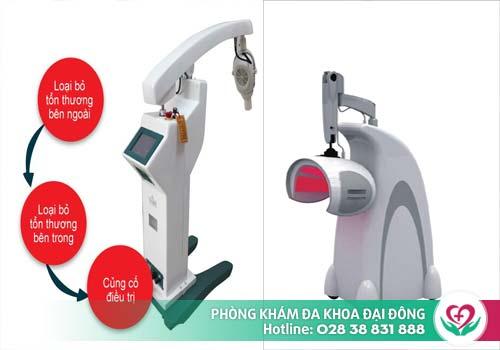 Máy ALA-PDT hỗ trợ điều trị sùi mào gà