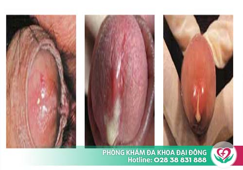Có rất nhiều bệnh lý về dương vật gây nguy hiểm đến tính mạng và khả năng sinh sản của nam giới