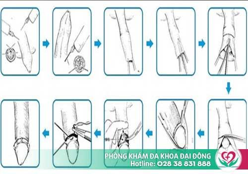 Quy trình cắt bao quy đầu thẩm mỹ, không đau tại Đa Khoa Đại Đông
