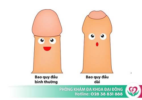 Dài - Hẹp bao quy đầu là một trong những nguyên nhân tích tụ bựa sinh dục