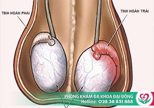 Viêm tinh hoàn, viêm mào tinh cũng là nguyên nhân gây đau bẹn, đau háng