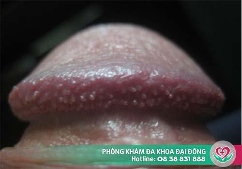 Gai sinh dục không nguy hiểm đến sức khỏe người bệnh