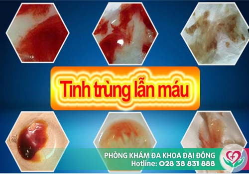 Xuất tinh ra máu là dấu hiệu của nhiều bệnh nguy hiểm