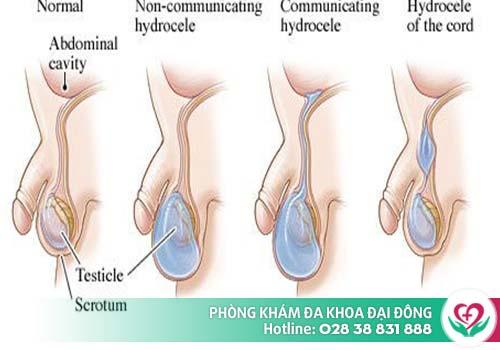 Tràn dịch màng tinh là bệnh dễ gặp ở nam giới