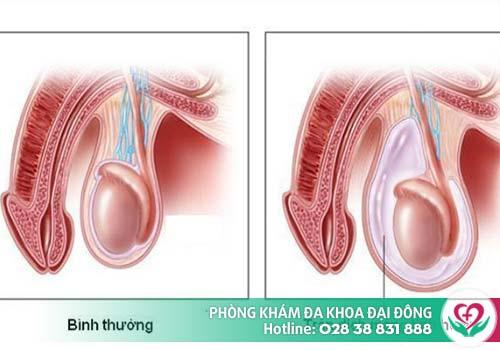 Tràn dịch màng tinh thường gặp do các bệnh viêm tinh hoàn, chấn thương, viêm mào tinh...