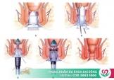 Phẫu thuật cắt mổ trĩ ở đâu tốt tại TPHCM?