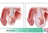 Tràn dịch màng tinh hoàn: Bệnh nguy hiểm cần chữa sớm